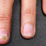 Thuốc điều trị bệnh nấm móng tay