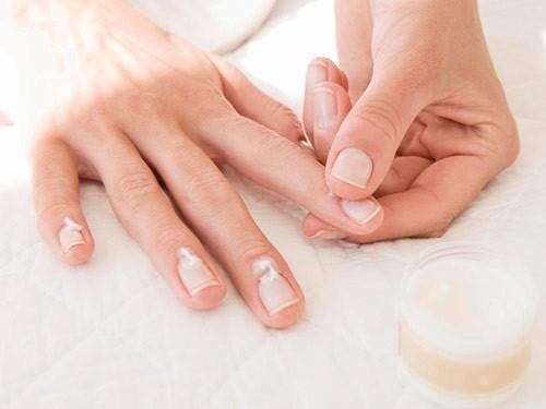 Người bệnh sẽ bôi thuốc lên bề mặt móng và quanh móng sau khi rửa và cạo sạch chỗ tổn thương móng.