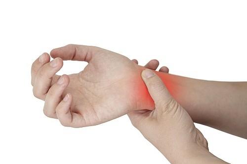 Hội chứng ống cổ tay cũng là nguyên nhân gây đau cổ tay và bàn tay.