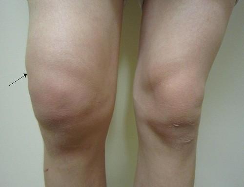 Tràn dịch khớp gối có nguy hiểm không là lo lắng của nhiều người khi được chẩn đoán mắc phải tình trạng này.