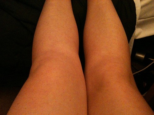 Một bên gối bị sưng nề, to hơn bên gối lành là triệu chứng thường gặp của tràn dịch khớp gối.