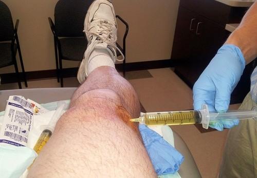 Chọc hút dịch khớp có thể được thực hiện để chẩn đoán tràn dịch màng khớp gối.
