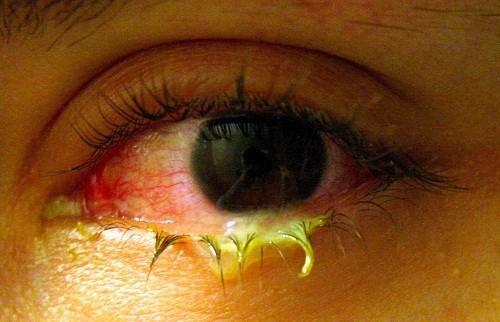Một triệu chứng khác của đau mắt đỏ là mắt dính, khó mở do tiết quá nhiều ghèn.