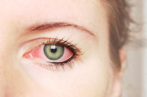 Triệu chứng đặc trưng nhất của đau mắt đỏ là mắt bị đỏ