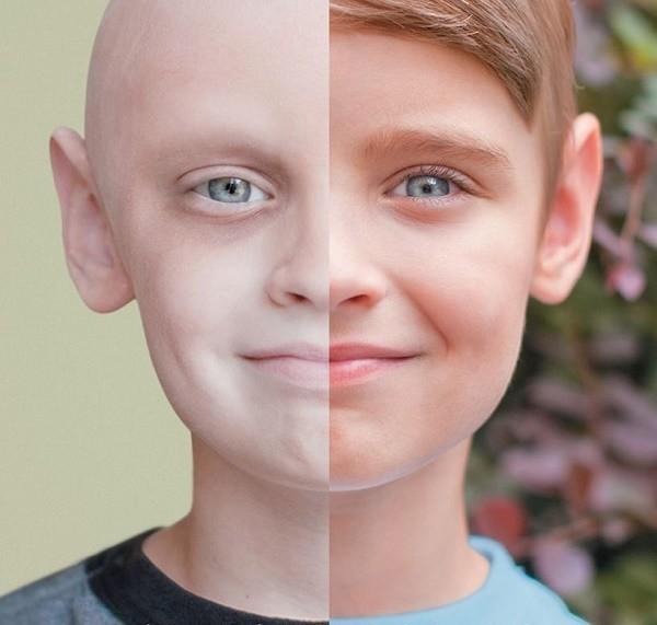 Số lượng tế bào máu đỏ thấp bất thường ở trẻ bị ung thư máu khiến cho làn da của trẻ xanh xao, nhợt nhạt.