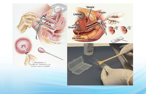 Cách phòng bệnh ung thư cổ tử cung