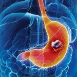 Phát hiện ung thư dạ dày giai đoạn đầu: 70% cơ hội thoát bệnh