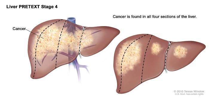 Ung thư gan giai đoạn cuối sống được bao lâu