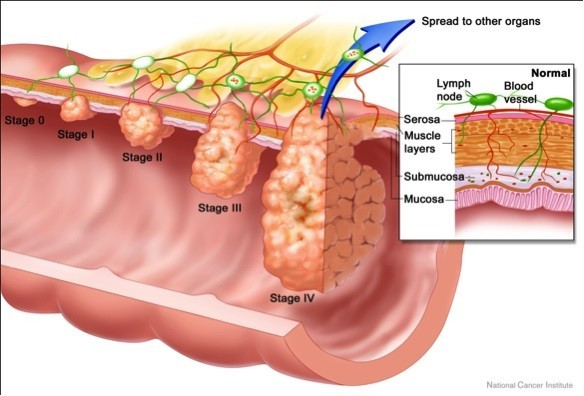 Các giai đoạn ung thư trực tràng.