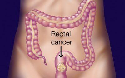 Ung thư trực tràng: 90% có thể chữa khỏi nếu phát hiện sớm