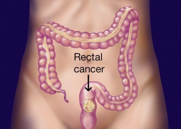 Ung thư trực tràng