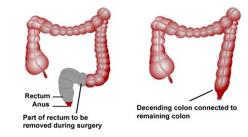 Phẫu thuật là một trong số những phương pháp điều trị ung thư trực tràng.