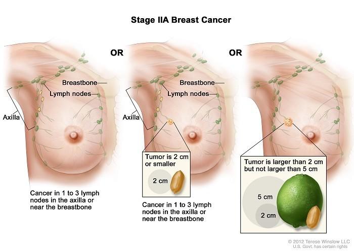 Ung thư vú giai đoạn 2 sống được bao lâu