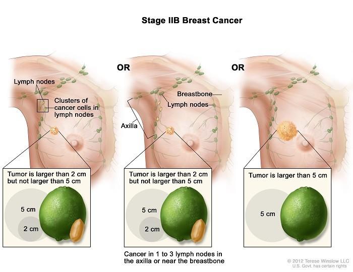 Ung thư vú giai đoạn 2B sống được bao lâu