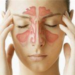 Viêm xoang do nấm – bệnh không thể xem thường
