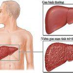 Những giai đoạn của bệnh xơ gan