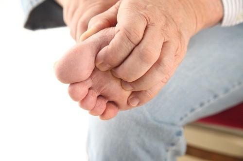 Biểu hiện của bệnh chàm tổ đỉa là có những mụn nước nhỏ ăn sâu dưới lớp thượng bì làm da nổi gồ lên, hình tròn, rải rác hoặc thành chùm, thường xuất hiện ở lòng bàn tay, bàn chân và các rìa ngón tay, ngón chân.
