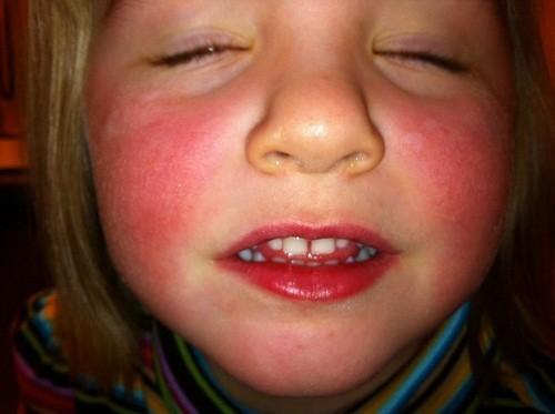 Phát ban đỏ trên mặt hoặc trên cơ thể có thể là triệu chứng của bệnh lupus ban đỏ ở trẻ em.