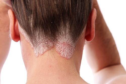 Bệnh vẩy nến da đầu không phải là bệnh truyền nhiễm, nên không thể lây lan.