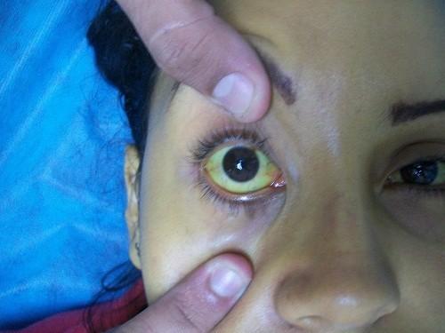 Da và lòng trắng mắt chuyển màu vàng có thể là dấu hiệu của bệnh xơ gan.