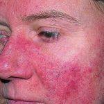 Biểu hiện của bệnh lupus ban đỏ