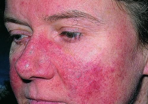 Phát ban bướm trên da và sống mũi là biểu hiện của bệnh lupus ban đỏ thường gặp.