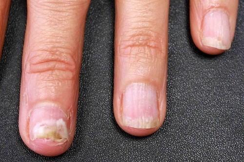 Biểu hiện nấm móng tay thường gặp nhất là móng tay trở nên dày và đổi màu.