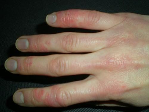 Bệnh Raynauld xảy ra khi các động mạch nhỏ, các mao mạch máu bị co thắt, gây biến đổi màu sắc da và thiếu dưỡng vùng mô mà mạch máu đó nuôi dưỡng.