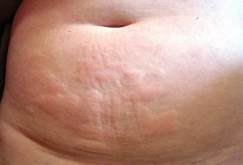 Triệu chứng của nổi mề đay xuất hiện sau khi da tiếp xúc đột ngột với nhiệt độ không khí hoặc nước lạnh.