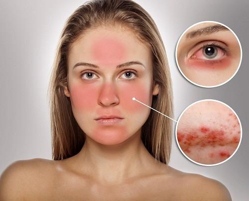 Thời tiết khắc nghiệt, quá nóng hoặc quá lạnh, gió và ánh sáng mặt trời là một trong các yếu tố nguy cơ kích hoạt sự phát triển của chứng đỏ mặt.