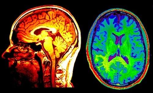 Quét não là một trong những xét nghiệm chẩn đoán đột quỵ được thực hiện ngay cả khi các triệu chứng của bệnh đã rất rõ ràng.