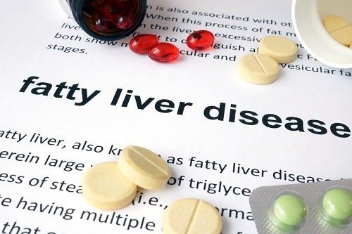 Phát hiện sớm và chẩn đoán gan nhiễm mỡ chính xác để có biện pháp xử lý kịp thời là cách hiệu quả nhất giúp ngăn chặn các biến chứng nghiêm trọng nêu trên.