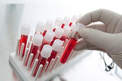 Những người bị gan nhiễm mỡ có thể có men gan cao hơn bình thường khi xét nghiệm máu.