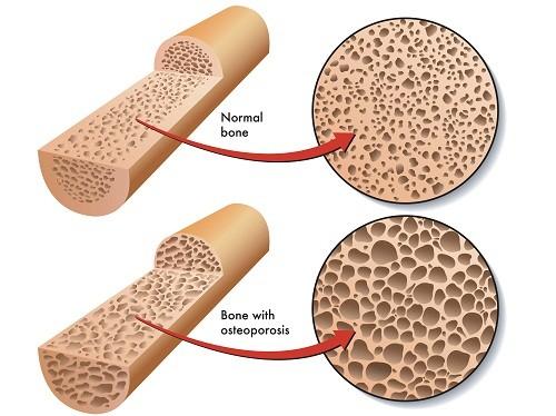 Loãng xương khiến sức chống đỡ và chịu lực của xương giảm sút, xương sẽ dễ gãy hơn.