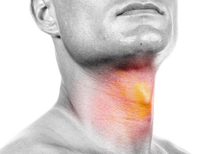 Điều trị bệnh ung thư đầu cổ
