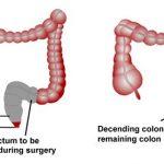 Điều trị ung thư trực tràng theo từng giai đoạn