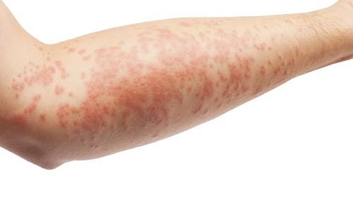 Mục tiêu của điều trị viêm da dị ứng là giảm viêm, giảm ngứa và ngăn chặn bùng phát trong tương lai.
