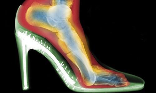 Khi dùng giày cao gót, cơ chế vòm của bàn chân bị phá vỡ.
