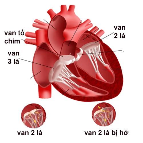hep-van-2-la-co-sinh-con-duoc-khong