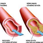 Mỡ trong máu cao là bệnh gì?