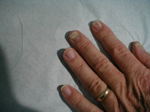 Bệnh nấm móng tay lại gây ra không ít phiền toái cho đời sống hàng ngày.