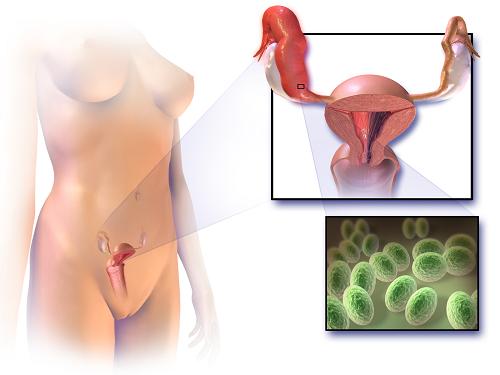 Viêm vùng chậu cấp tính là một trong những nguyên nhân gây đau vùng chậu.