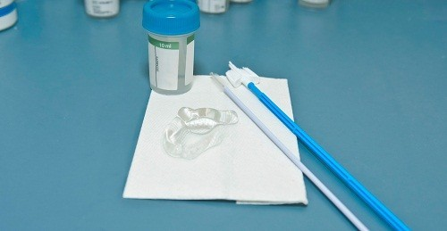 Xét nghiệm Pap là một xét nghiệm trong đó mẫu tế bào từ cổ tử cung được lấy ra để kiểm tra.