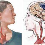 Tai biến mạch máu não có biểu hiện như thế nào?