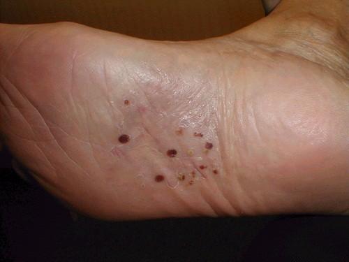 Bệnh chàm tổ đỉa có triệu chứng đặc trưng là xuất hiện mụn nước ở mặt sau, mặt bên ngón tay, lòng bàn tay, mặt dưới, mặt bên các ngón chân, lòng bàn chân.