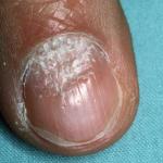 Tìm hiểu về bệnh vẩy nến móng tay
