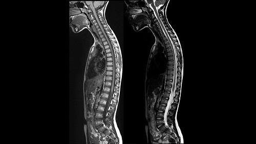 Khi nhìn nghiêng, ở người khỏe mạnh, sức nặng của thân hình ở tư thế đứng thẳng uốn cột sống thành hình chữ S.
