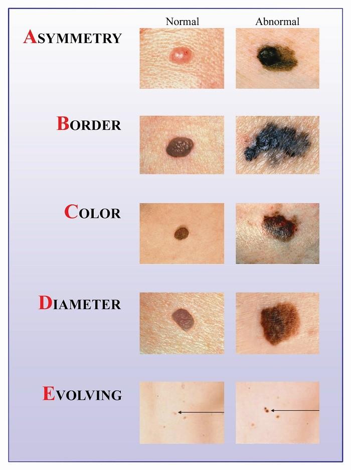 Triệu chứng ung thư hắc tố