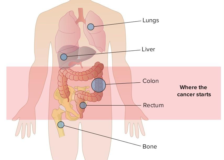 Ung thư đại tràng iai đoạn cuối