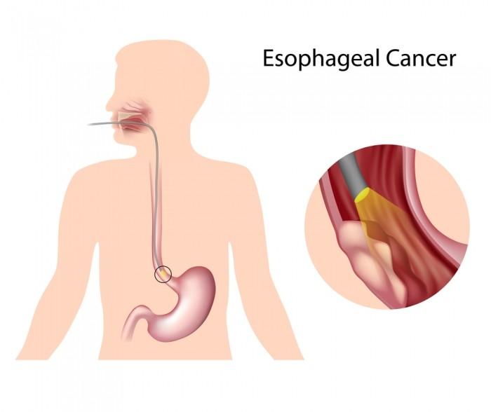 Ung thư thực quản